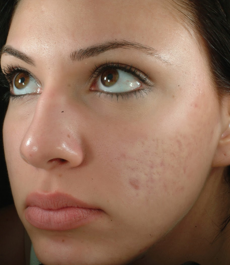 2 Reasons Why You Get Acne Scars - GoodBye Acne