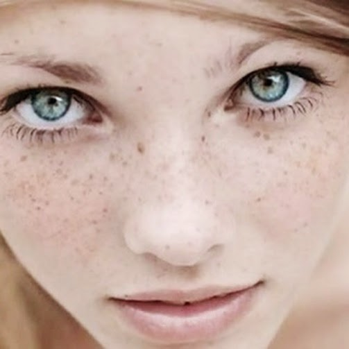 MooGoo Skin Care Hyperpimentation