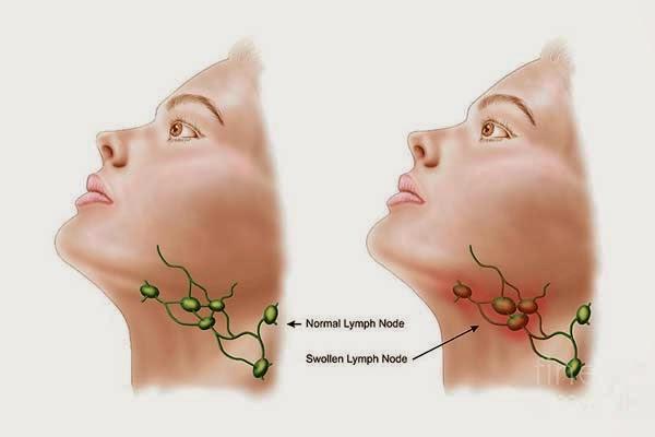 Cara Menghilangkan Lemak Di Leher Dan Bawah Dagu