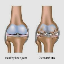 Obat Osteoarthritis Tradisional