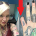 Έκοψε το μικρό δάχτυλο του χεριού της και ανέβασε τη φωτογραφία στο Facebοok. Το χειρότερο της ιστορίας όμως, είναι πως…