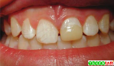 The left maxillary central incisor is restored with dental materials to its original form after a crown fracture.
