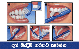 Teeth cleaning guide