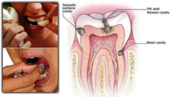 Tips Hilangkan Sakit Gigi Hingga ke Akarnya