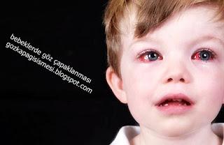 Bebeklerde Göz Kapağı Şişmesi Nedenleri