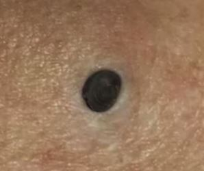She Thought That It Was Just A Mole, Until The Doctors Told Her That It Had To Be Removed Immediately!