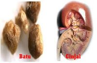 Gambar Obat batu ginjal alami