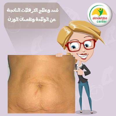 شد وعلاج الترهلات الناتجة عن الولادة ونقصان الوزن