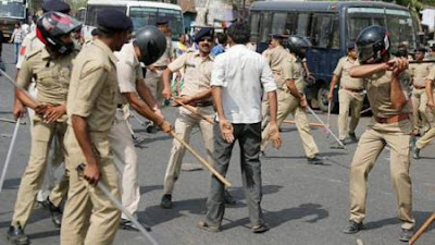 Dalit Accuses Police For Torture