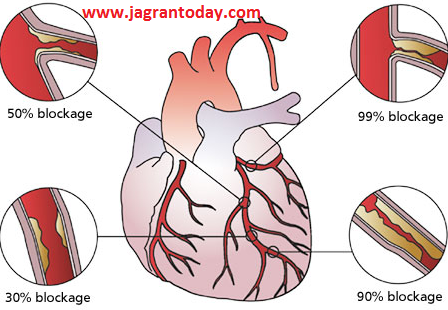 Pipal Leaves Remove Heart Blockage