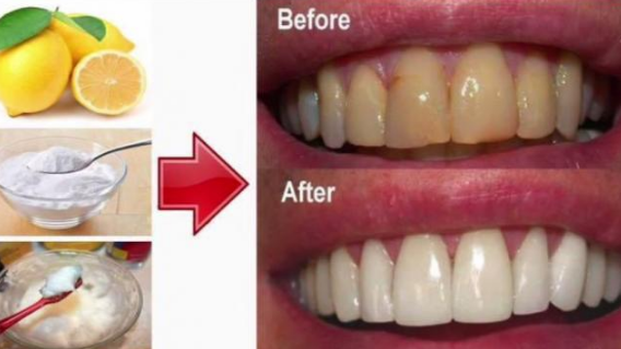 Will baking soda whiten teeth