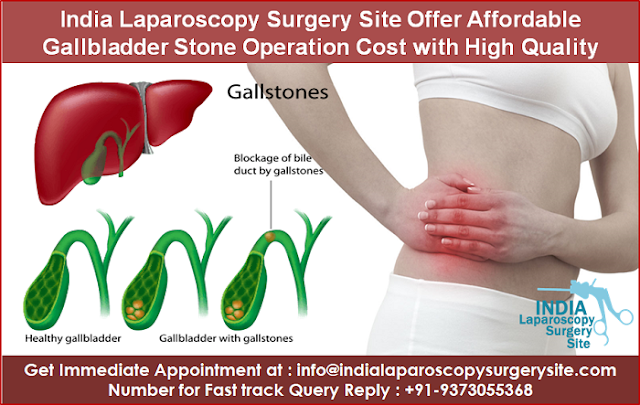 India Laparoscopy Surgery Site Offer Affordable Gallbladder Stone Operation Cost  with Quality