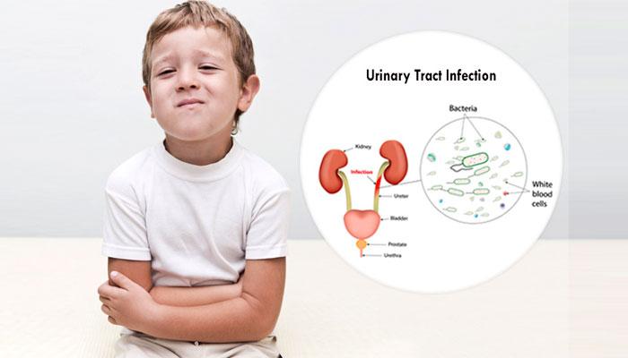 Cara Mengobati dan Mencegah Infeksi Saluran Kemih (ISK) pada Anak