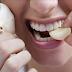 Ponha 1 dente de alho na boca e deixe por 30 minutos, conheça os benefícios desta terapia