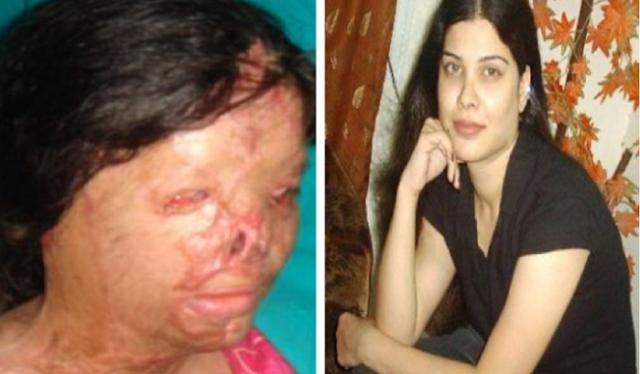 بالصور ..صديقة حَسودة صَبت على وجهها حامض أخفى ملامحها لن تصدق كيف أصبح وجه هذه المرأة بعد سنوات من العمليات