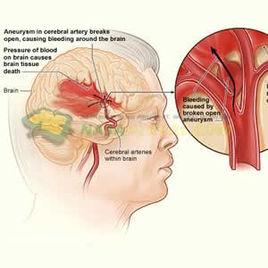 10 Faktor dan Penyebab Gejala Penyakit Stroke