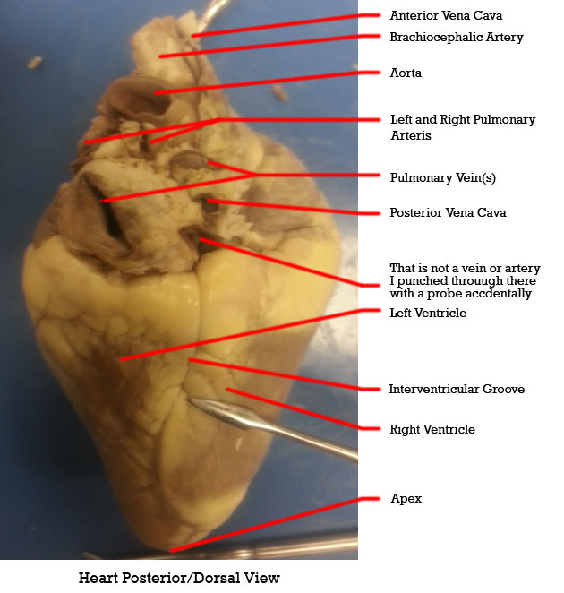 Duda's Epic Quest To Epicness: External Heart Anatomy