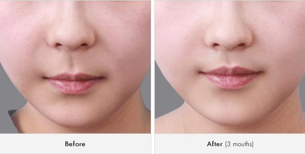 Get Rid Smile Line, Get Baby Face Effect Through Korean Face Contouring