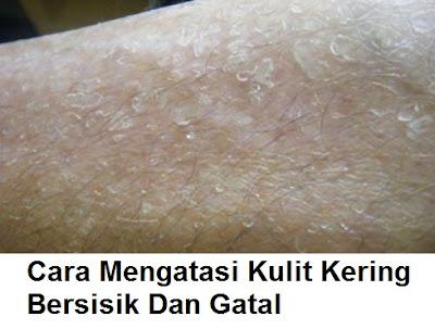 cara mengatasi kulit kering, bersisik dan gatal