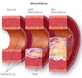 turunkan kolesterol, cara turunkan kolesterol dengan mudah