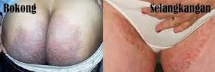 Obat Gatal Selangkangan Pantat Paling Ampuh Di Apotik