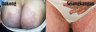 obat gatal jamur di selangkangan wanita