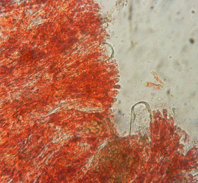 Microstoma protractum red pigment paraphyses