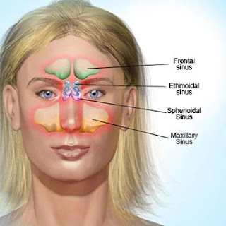 Pengobatan Infeksi Sinus
