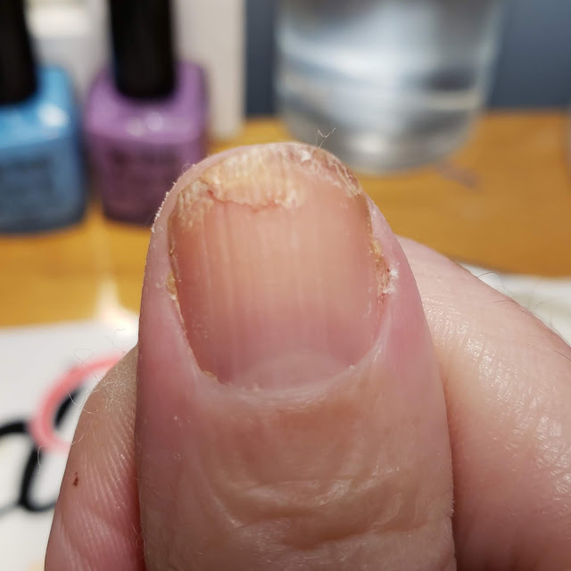 gel fix, nail torn, dry brittle nails
