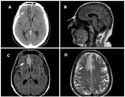 図:前頭葉の梗塞