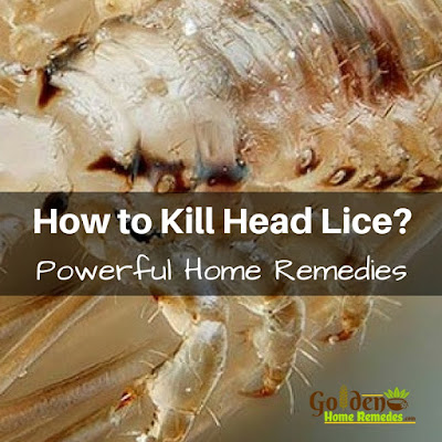 Mayonnaise For Lice, Mayonnaise For Head Lice, Head Lice Treatment, How To Get Rid Of Hair Lice, Home Remedies For Head Lice, Head Lice Home Remedies, How To Get Rid Of Head Lice, Treatment For Head Lice, How To Remove Head Lice, How To Treat Head Lice, Hair Lice, Hair Lice Remedies, Head Lice Remedies