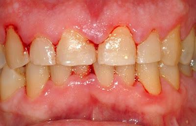 video hướng dẫn cạo vôi răng tại nha khoa -5