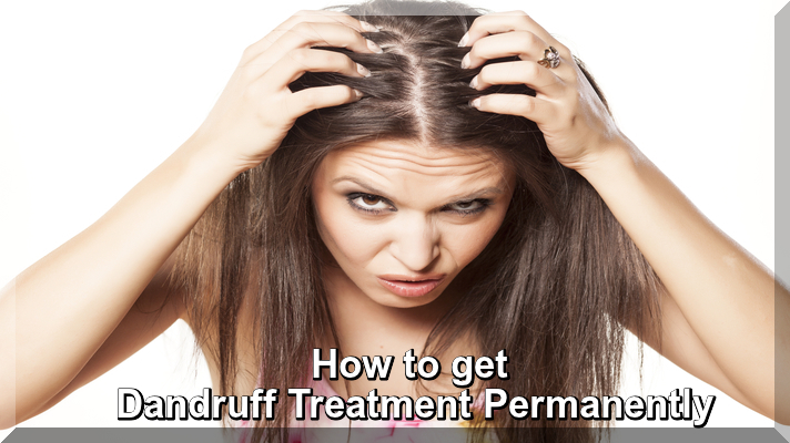 How to get Dandruff Treatment Permanently