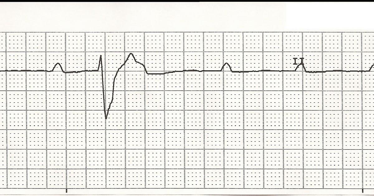Float Nurse: EKG Rhythm Strips 35
