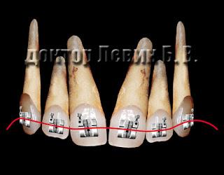 Каждая новая ортодонтическая дуга - это новый толчок для перемещения зубов в идеальное положение