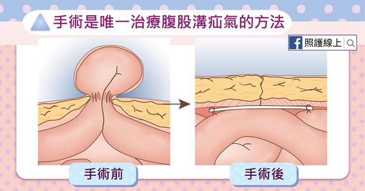 用手術治療腹股溝疝氣-照護線上