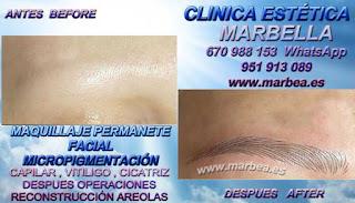 micropigmentación Marbella