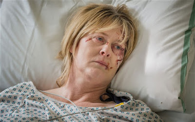 Catherine, en el hospital, al final de la primera temporada de Happy Valley