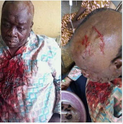 Thugs Break Head of Former APC Chairman for Dumping Party?