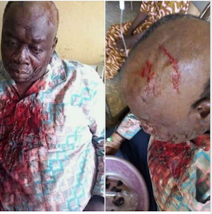 Hooligans Mercilessly Beats Head of Former APC Chairman for  Defecting ? (photos)
