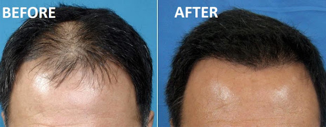 Hair gain ke liye prp treatment