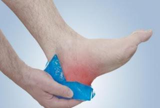 remedios caseros hielo para los dolores de pie