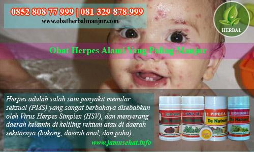 obat herpes menahun