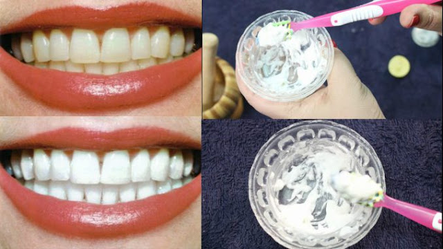 Natural Remedies and Tips for Whitening Your Teeth