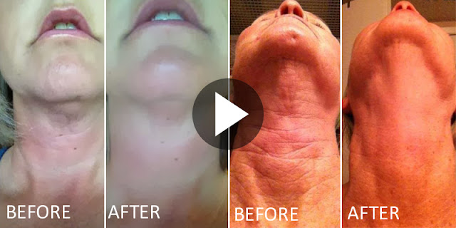 How To Get Rid Of Wrinkles And Line Of Neck And Get Clean Neck