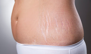 Male & Female Celebrities With Stretch Marks
