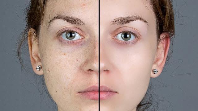 Dùng thuốc ngừa thai diane 35 khoảng 3 đến 4 tháng cho bạn làn da mịn màng