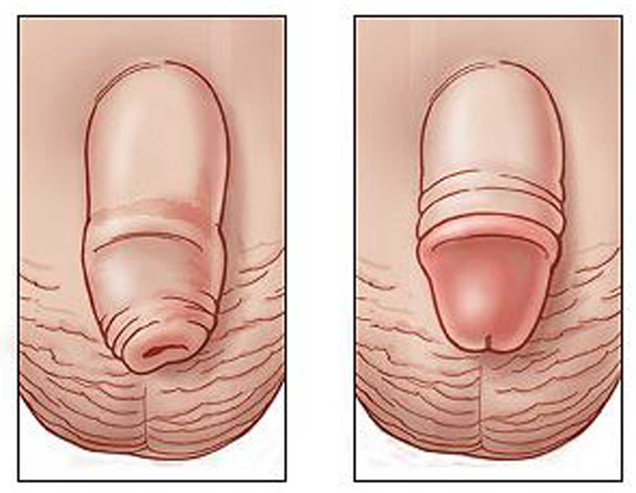 Experience Injuries to the Male Genitalia