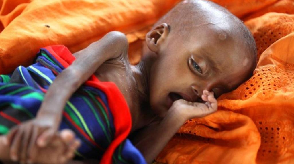 Αποτέλεσμα εικόνας για πεινα αφρικη