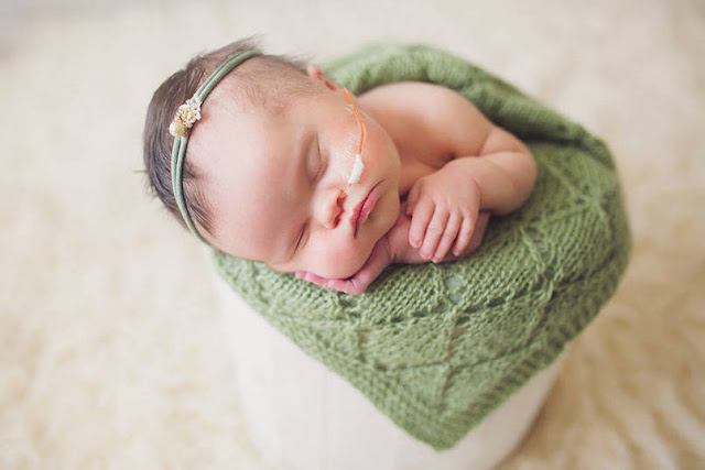 This Beautiful Baby Girl Will Only Live a Few Weeks, So Her Family Won't Leave Her Side
